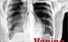 Vaping can lead to serious pulmonary illnesses