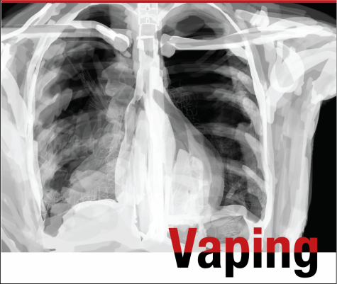 Art by Maggie Klaers. According to pediatric lung specialist Dr. Brooke Moore, when looking at an x-ray of healthy lungs, the lungs should appear dark black, as they are filled with air. However, as of Oct. 1, over 1000 cases of a vaping-related illness have been reported. This illness causes otherwise healthy teens to present with pneumonia-like x-rays. White fluffy clouds of inflammation replace the black coloration of air in the x-ray.